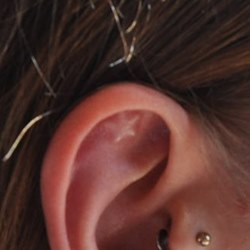 Ear star implant